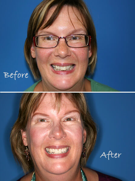 Invisalign straight teeth adult braces