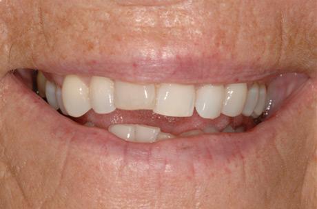 Dental Accident Repair