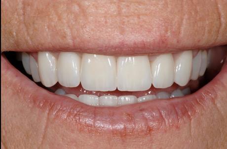 toothRepair2