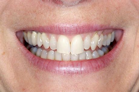 Cosmetic Dentistry in Warrenville