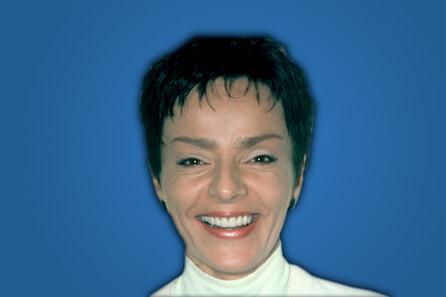 Veneers by Dr. Greg Potempa Dentist in Warrenville, IL