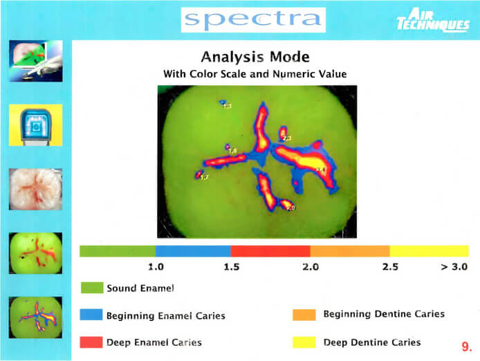 spectra tooth analysis
